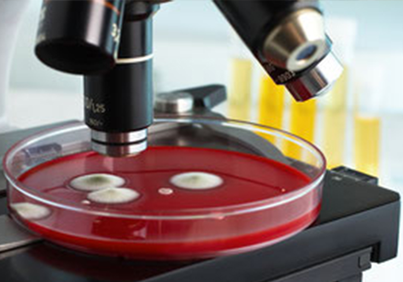 Schimmelkultur unter dem Mikroskop