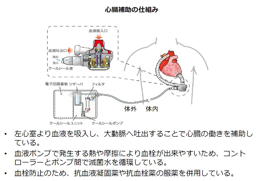 補助人工心臓エヴァハートの仕組み