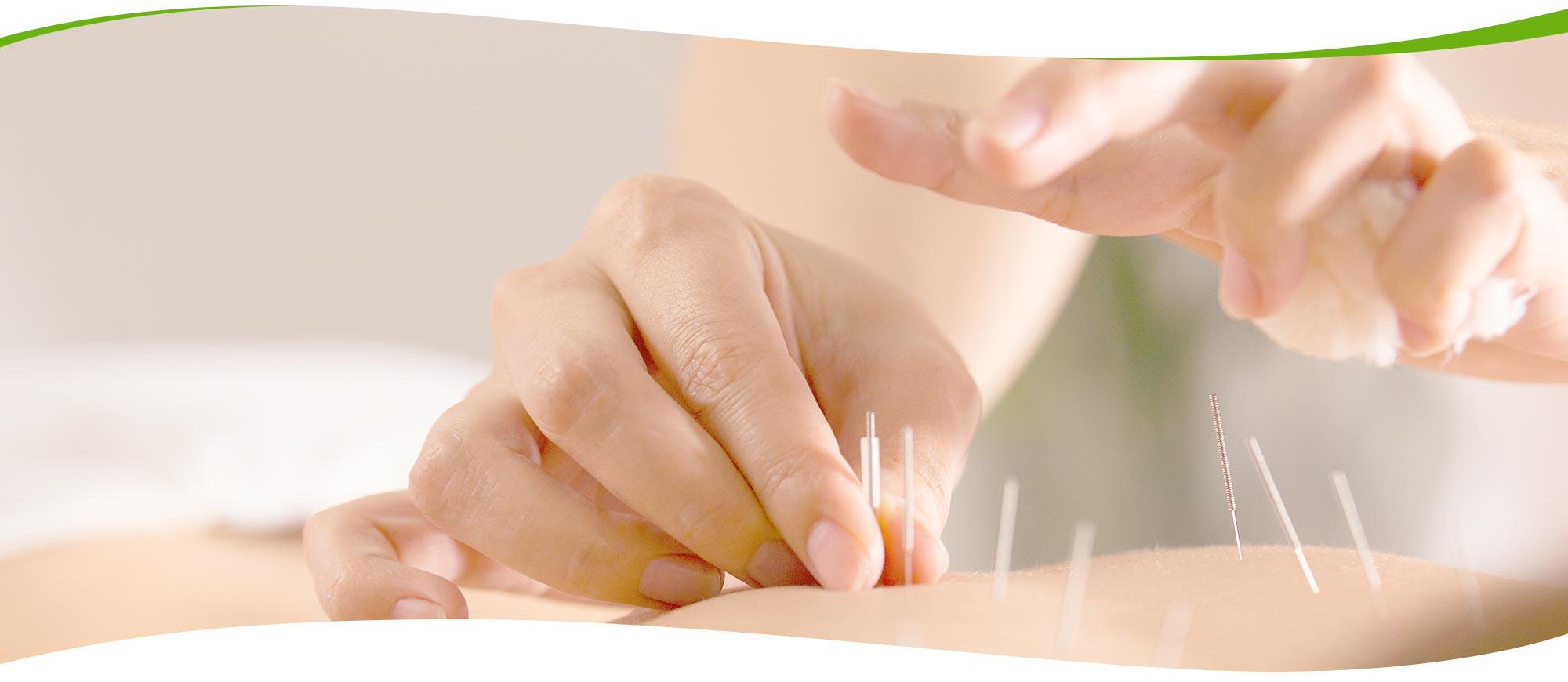 さちこ鍼灸院 鍼灸施術のイメージ画像