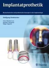 Buch Implantatprothetik