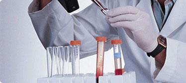 rt-PCR mastermixe, gefriergetrocknet,