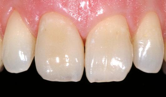 Zahnfleischkorrektur Nachher