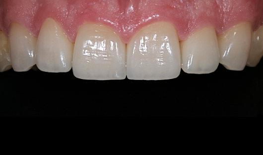 Verlängerung Frontzähne Nachher