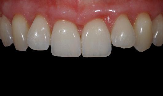 Deckung Zahnfleischrückgang Nachher