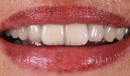 Parodontosebehandlung Nachher