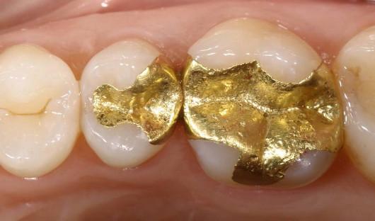 Austausch von Gold- in Keramikinlays Vorher