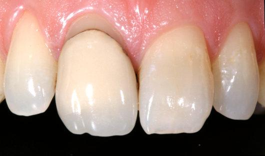 Zahnfleischkorrektur Vorher