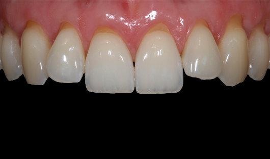 Deckung Zahnfleischrückgang Vorher