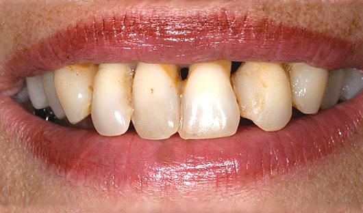 Parodontosebehandlung Vorher