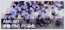 AML M1 骨髄(BM) PO染色