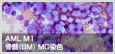 AML M1 骨髄(BM) MG染色