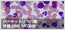 バーキットリンパ腫 骨髄(BM) MG染色